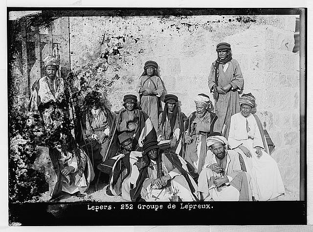 Costumes, characters and ceremonies, etc. Lepers